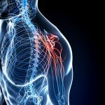 St. Louis Automobile Accident Injuries – Nerve Damage