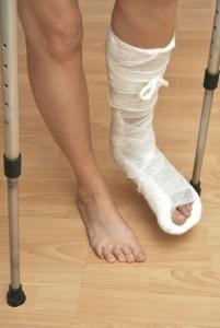 fractured-leg-car-accident