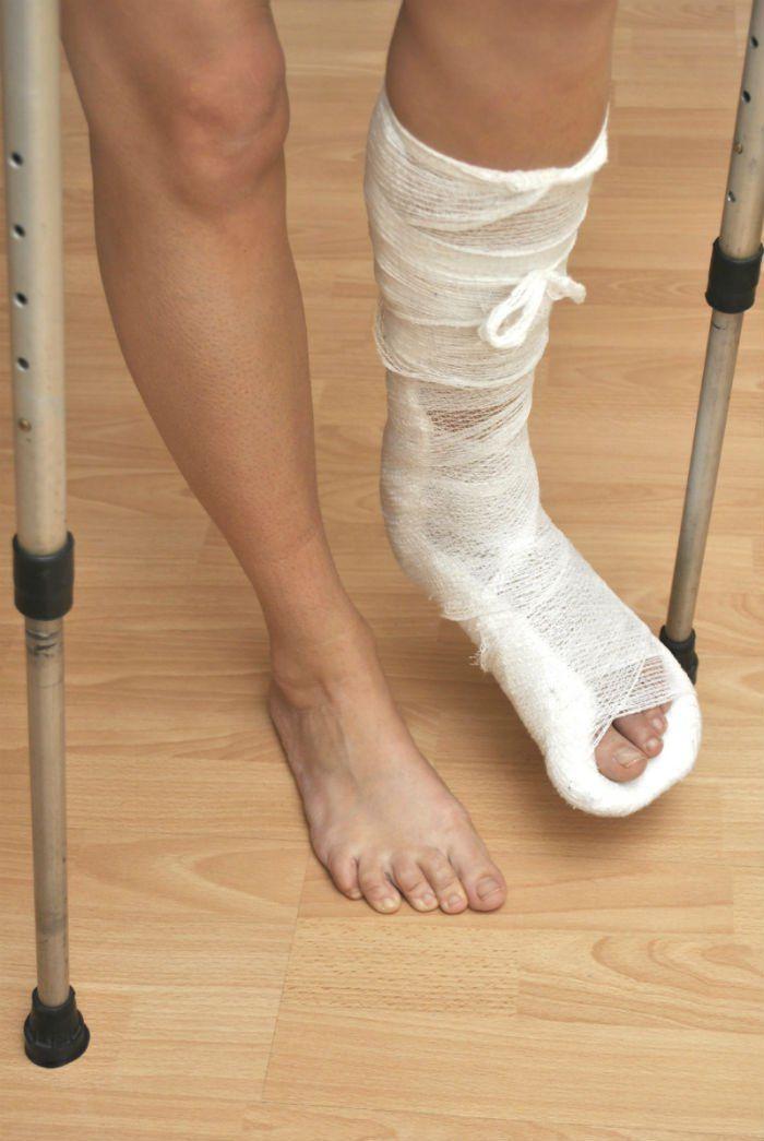 Personal Injury Claim Broken Leg