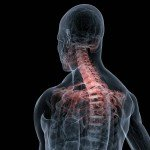 Cervical Sprain from Car Accident