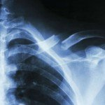 Injured in a St. Louis Car Accident – Broken Collarbone