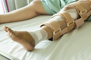 auto crash injuries broken bones