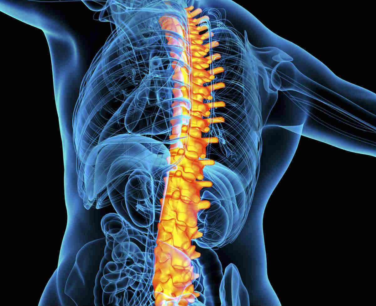 Spinal Compression Fracture Car Accident