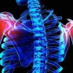 Scapula Fractures Caused by Auto Accident