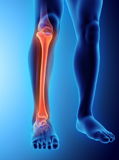 Tibial Fractures & Tibia Injury from Car Accident