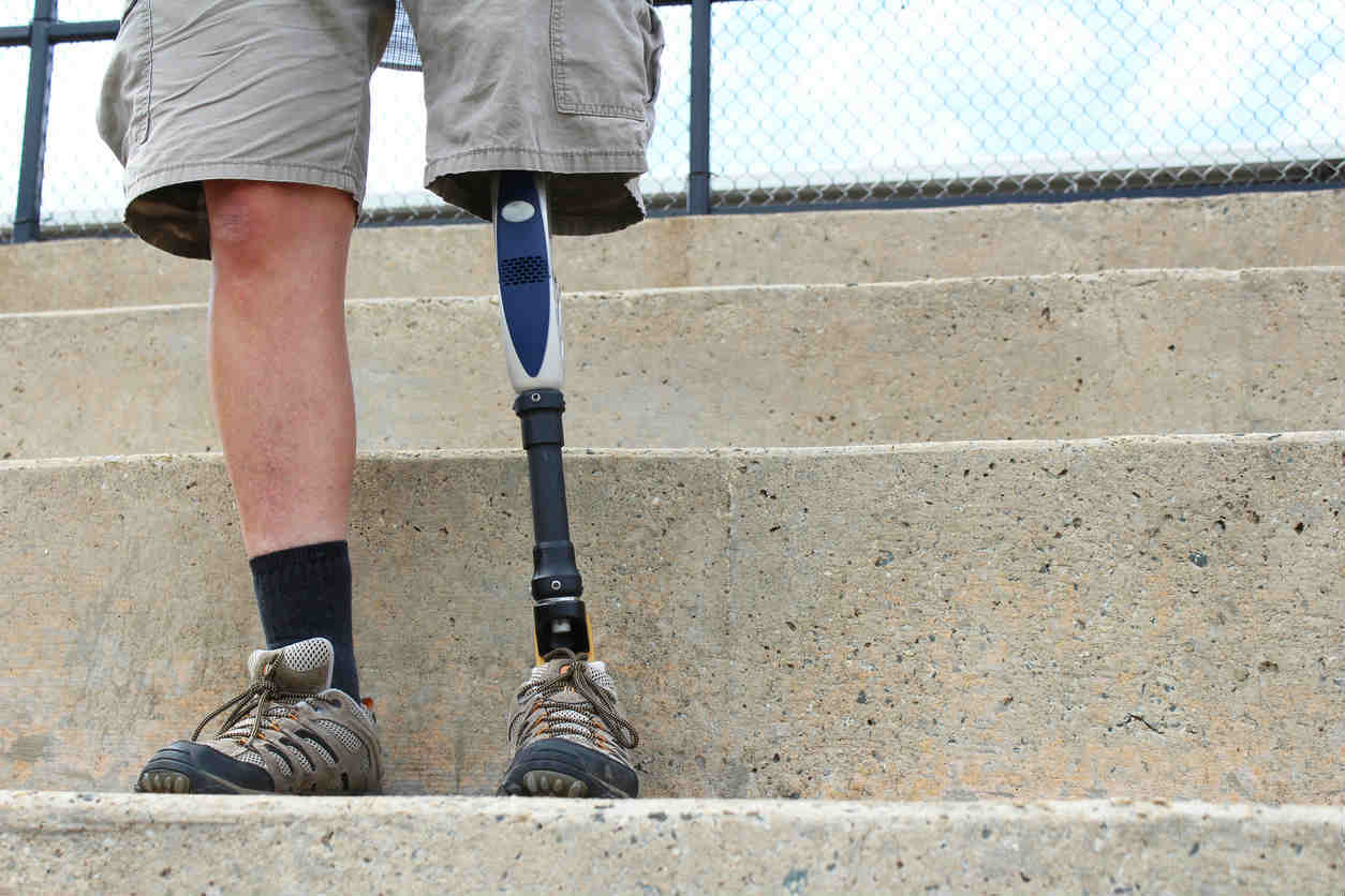 St. Louis car crash victim with prosthetic leg