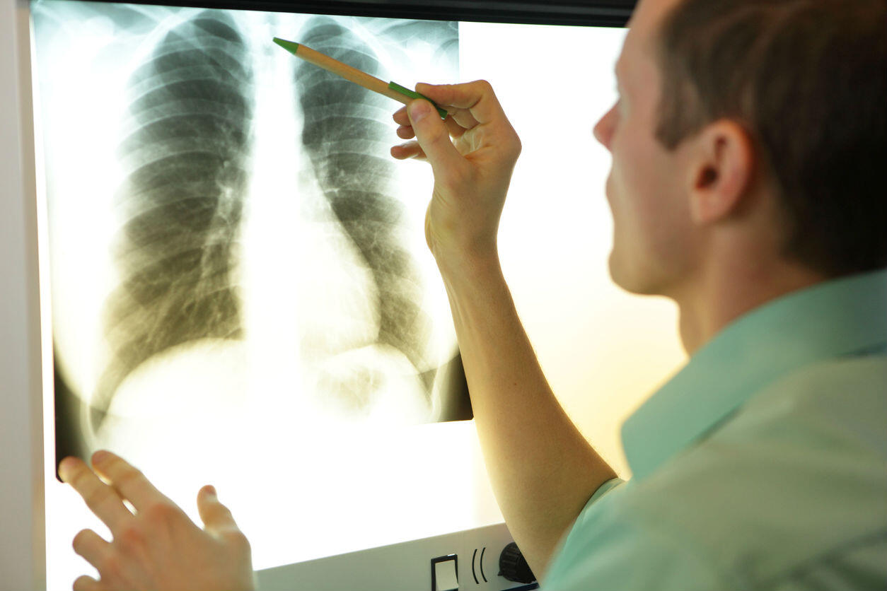 St. Louis doctor looking at chest x-ray