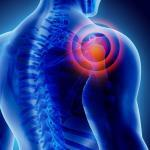 Rotator Cuff Injury from Car Accident